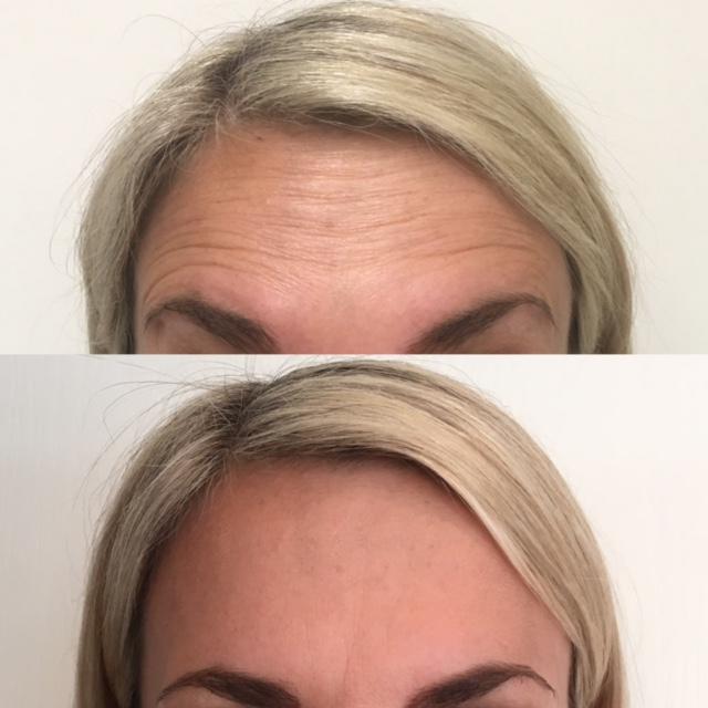 forehead-medium